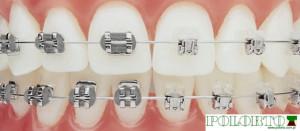 aparat na zęby staly