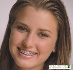 dziewczyna z metalowym aparatem na zębach