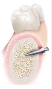 implanty ortodontyczne
